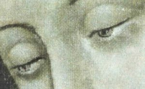 eye olg